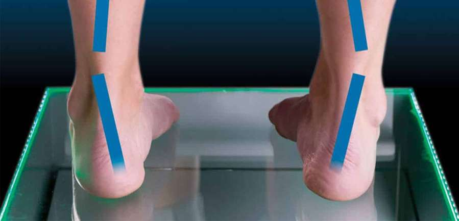 سندرم پرونیشن - کفش شهپر