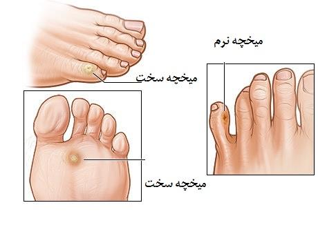 مخچه پا