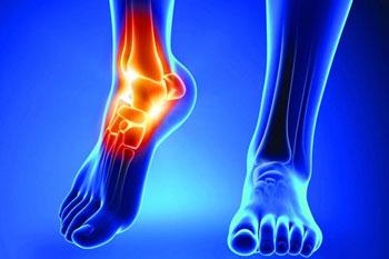کفش نامناسب و درد مفاصل