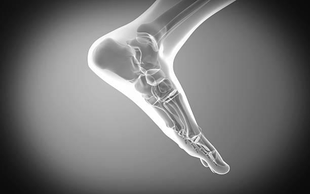 مفاصل پا