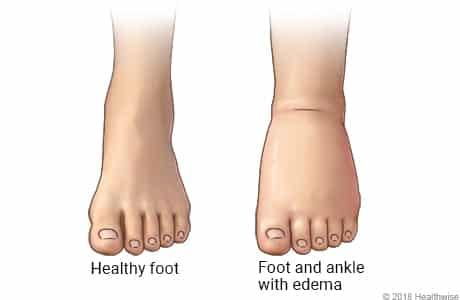 علت های ورم کردن پا - کفش شهپر