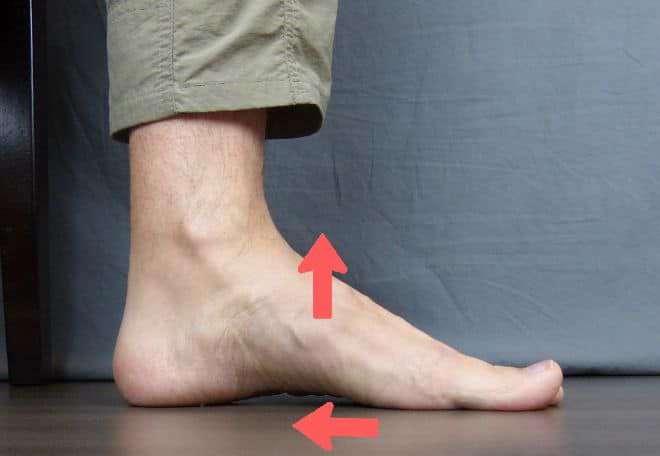 درمان صافی کف پا - کفش شهپر